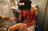 Marzia Bazmohamed 惨不忍睹的身体。