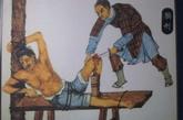 膑刑又称 髌刑,古代肉刑之一,即剔去膝盖骨的刑罚。古代著名军事家大败庞涓的孙膑就曾受过此刑