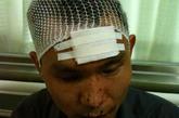9月7日凌晨,309医院,受伤男士在录口供。新京报记者 浦峰 摄