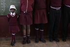 身患罕见早衰症的南非女童(高清组图)