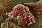 肺癌细胞。这张异常的肺癌细胞图。(文/凤凰网健康综合,图/资料图)