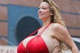 过犹不及,不管天然还是后天隆胸隆出的世界巨乳,过大的乳房除了对女性造成不便之外,还可能对生命构成危险。如引发慢性乳腺炎、疼痛、肩部酸痛沉重及乳房下皮肤糜烂等疾病。对于巨乳症,可通过缩胸手术缩小乳房体积来重塑乳房的轮廓和形态,调整乳房位置。 世界最大人造乳房——Maxi Mounds(玛茜·蒙德斯),由于隆胸材料选取不当导致乳房不断膨大,解决巨乳问题,玛茜首要的是取出有害注射物。(来源:凤凰网健康论坛)