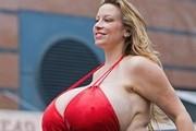 世界最大人造乳房 胸太大带来健康隐患