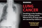 吸烟是诱发肺癌的第一大因素,约有85%的肺癌病例都由吸烟引。(资料图)