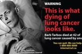 据英国媒体《每日邮报》10月3日报道,反吸烟运动人士近日公开了最新一版的香烟警示图片,其中不乏吸烟重度受害者现身说法的惊悚画面。加拿大要求所有在加境内销售的香烟明年夏天前都要使用新版警示图片,且警示图片占烟盒的比例必须由目前的50%增加到75%。 烟民巴布-塔尔布克斯(女),42岁死于由吸烟引发的肺癌。图片再现的是她弥留时刻在病榻上虚弱又痛苦不堪的情景。(资料图)