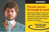 """一男性烟民因吸烟而罹患喉癌,不得不""""开喉插管""""以便利呼吸。(资料图)"""