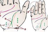 风湿病手相掌肌滑溜溜的,多有风湿病。手指关节肿而痛。感情线起点处成双,多有痛风。金星丘、月丘的隆起肌肉很瘦薄,筋力不足。生命线末端分叉成两股,末端扩散,表示风湿晚期行走有问题。尾指、无名指不能自由屈伸,老是弯曲,是风湿性神经麻痹。手腕周围到月丘下,出现暗紫黑斑,通常是风湿症腰部障碍,脚踝内侧也会呈现类似色调。