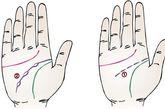 7、脑神经受损: 脑神经受损手相