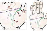 长期神痛经手相生命线始端显示患过扁桃腺炎。生命线呈链状,是神经痛宿疾,直到六十岁,体魄都不佳。智慧线的岛,暗示三十五岁左右受爱情问题困扰,或受病患之苦生命线分两股,表示到十岁左右身体虚弱,常休学。