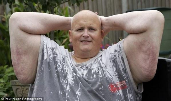 世界最胖男v世界250公斤皮肤手术盼下垂去赘皮郑多燕瘦腰初级瑜伽图片