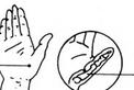 穴位按摩有效防治鼠标手等5大职业病
