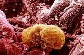 培育6天后的人类胚胎被植入子宫 生命循环从此开始:6天的人类胚胎开始被植入子宫内膜——子宫的内表面。
