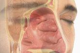 8、鼻窦 又称鼻旁窦、副鼻窦。鼻腔周围多个含气的骨质腔。它们隐蔽在鼻腔旁边,上颌窦位于鼻腔两旁、眼眶上面的上颌骨内;额窦在额骨内;筛窦位于鼻腔上部的两侧,由筛管内许多含气小腔组成;蝶窦在鼻腔后方的喋骨内。它们均以小的开口与鼻腔相通。医生对鼻窦所知不多,但是我们鼻腔附近有多个这样的骨质腔。它们的功能可能包括改变我们说话的音高和语调以及给眼睛降温。(来源:凤凰网健康综合,gettyimages供图)