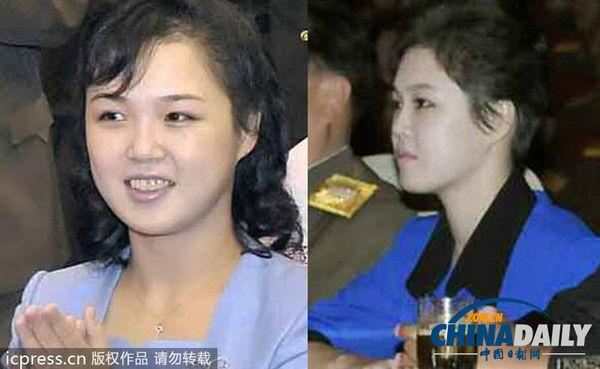 金正恩夫人李雪主换新发型亮相 被指简洁可爱(图)